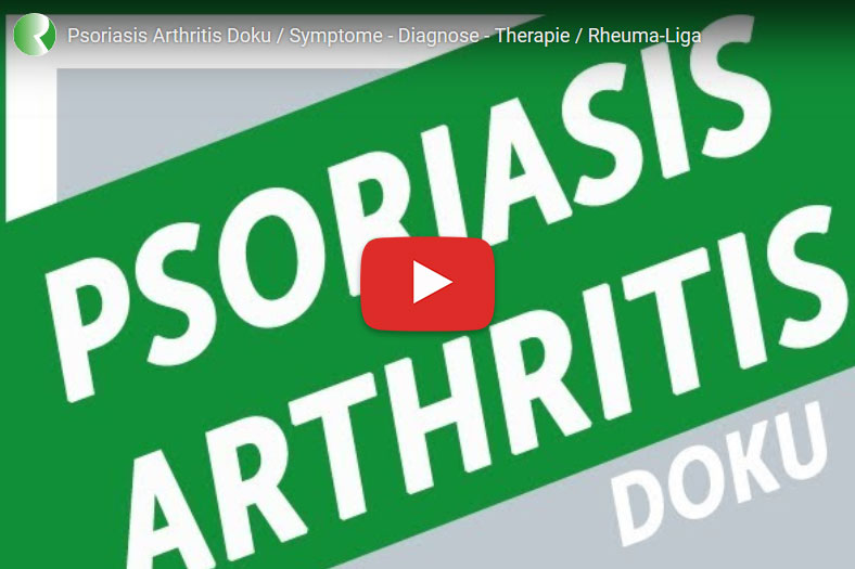 Psoriasis Arthritis: Symptome - Diagnose - Therapie / (c) Rheuma-Liga.