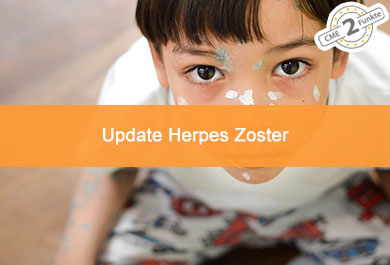 Update Hepes Zoster