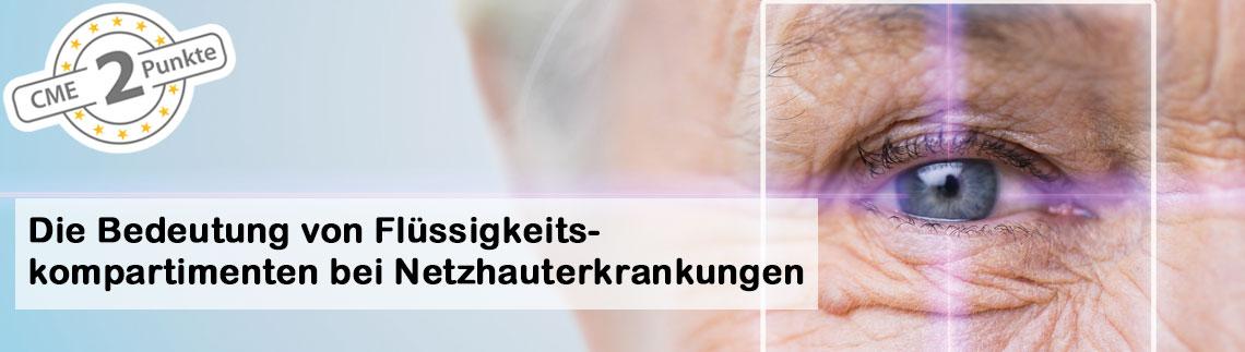 Die Bedeutung von Flüssigkeitskompartimenten bei Netzhauterkrankungen