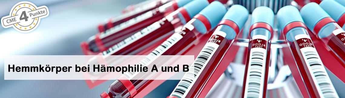Hemmkörper bei Hämophilie A und B