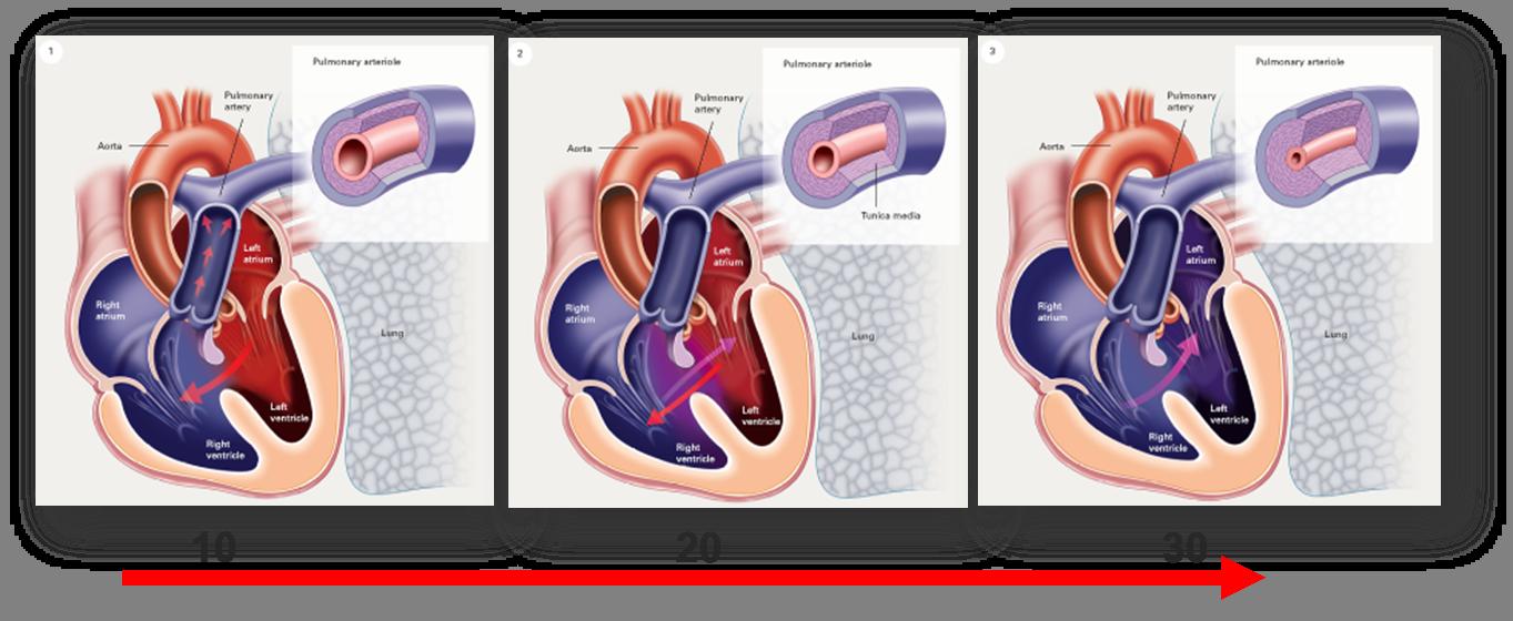 Entwicklung des Eisenmenger-Syndroms bei einem Patienten mit Ventrikelseptumdefekt