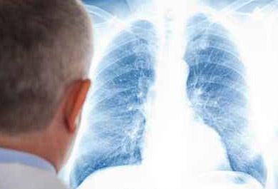 Leitliniengerechte-Behandlung-der-Lungenembolie-ESC-Update-2014