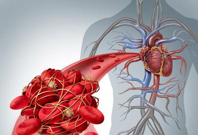 Orale-Antikoagulation-bei-nvVHF-–-Wie-ist-die-aktuelle-Versorgungssituation-–-Was-bleibt-zu-verbessern-