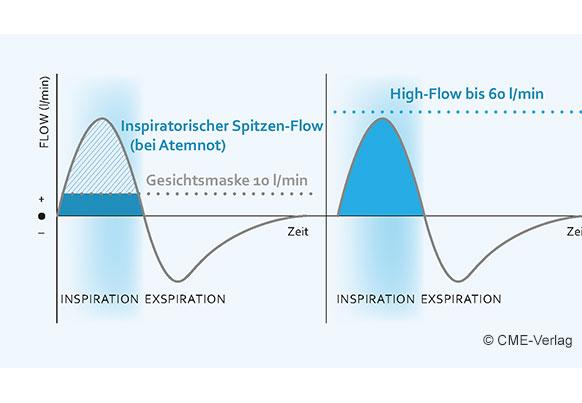 Verbesserte Oxygenierung unter nasaler High-Flow-Therapie (NHF)