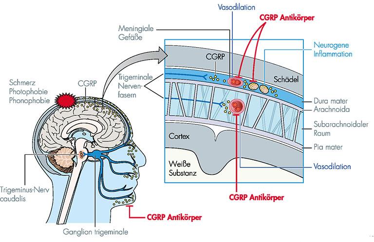 Behandlung der Migräne: Wirkprinzip der CGRP-Antikoerper